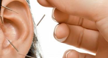 Auricular-Acupuncture1-e1423096039282